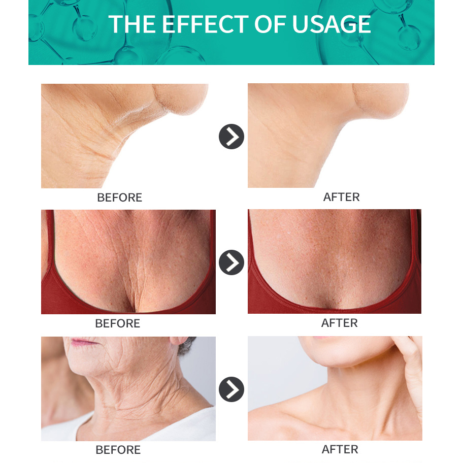 11.11 AuQuest Neck & Chest Wrinkle Cream Tight Skin Anti Aging Wrinkle Remover Lifting Skin Firming Cream Neck Cream Skin Care 4