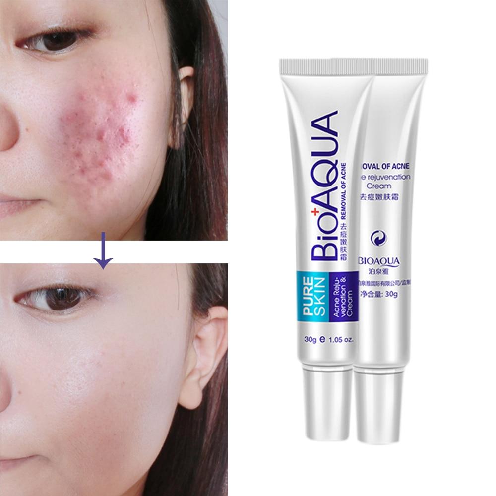 30g Acne Treatment Blackhead Remova Anti Acne Cream Oil