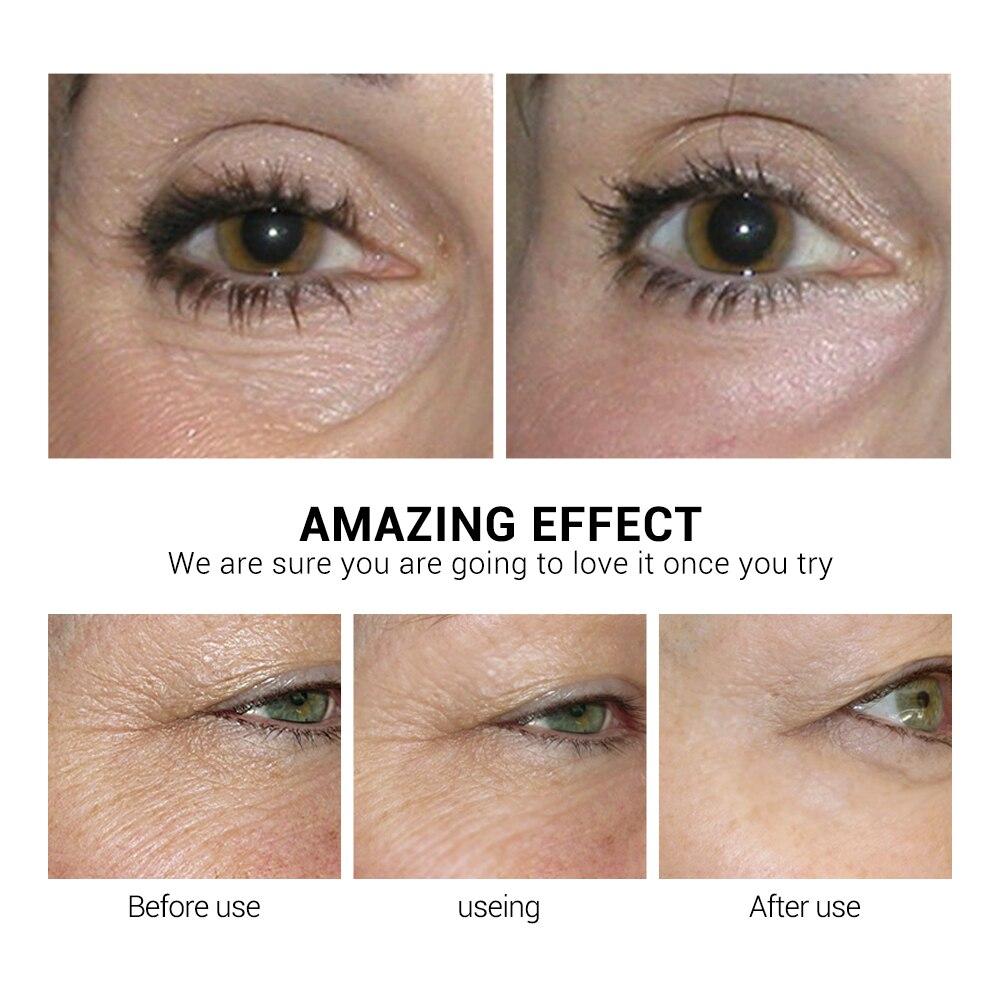 Patches de Soro Olheiras Olho Sacos Remover Reparação