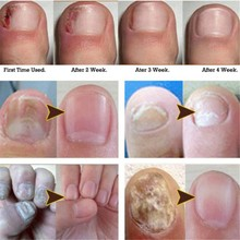 Nail Fungus Treatment Anti Fungal Nail Solution Ringworm Clear Healthy Toenail Growth