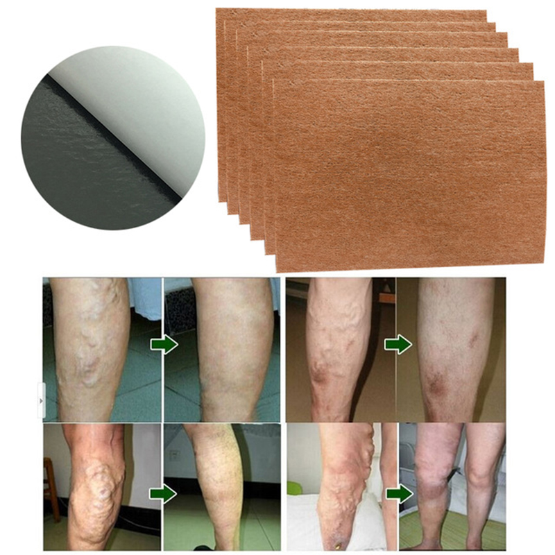 60Pcs Spider Veins Varicose Treatment Plaster Varicose Veins Cure Patch Vasculitis Natural Solution Herbal Patches