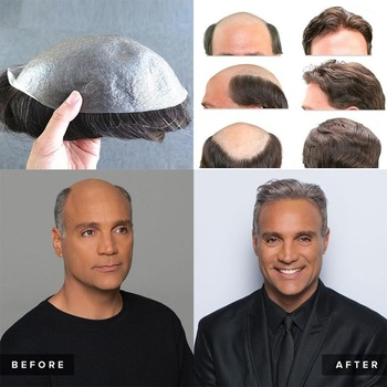 Hair prosthesis for men 100% natural hair Hair prosthesis for men Bella Risse https://bellarissecoiffure.ch/produit/prothese-capillaire-pour-homme-cheveux-100-naturel/