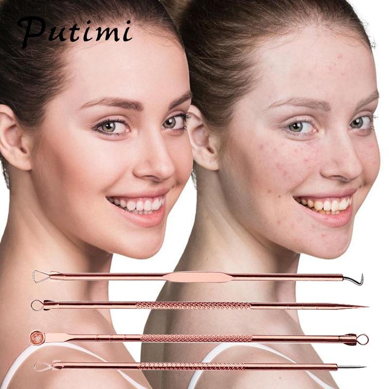 Putimi 4Pcs / Set Rose Gold spuogai Blackhead šalinimo adatos Pimple - Įrankių odos priežiūros - Nuotrauka 2