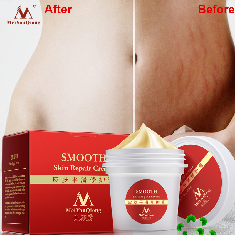 MeiYanQiong 35g Body Care Cream Stretch Marks Remover to Maternity Skin Scar Repair Smooth Postpartum Repair Skin Care Products