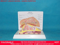 BREAST ANATOMICAL MODEL FOR EDUCATION HUMAN ORGAN MODEL BREAST MODEL ,BREAST ANATOMY,BREAST DISEASE MODEL GASEN RZRF003