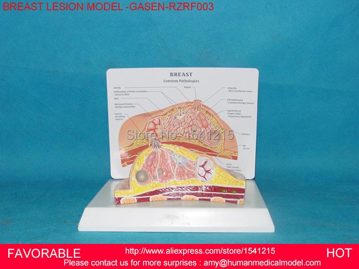 BREAST ANATOMICAL MODEL FOR EDUCATION HUMAN ORGAN MODEL BREAST MODEL ,BREAST ANATOMY,BREAST DISEASE MODEL -GASEN-RZRF003 skin block model 26 points displayed human skin anatomical model skin model