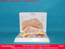 BREAST ANATOMICAL MODEL FOR  EDUCATION HUMAN ORGAN MODEL BREAST MODEL ,BREAST ANATOMY,BREAST DISEASE MODEL -GASEN-RZRF003