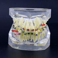 1pc Orthodontic Dental Treatment Malocclusion Model W/ Brackets Chain Wire #3005 03