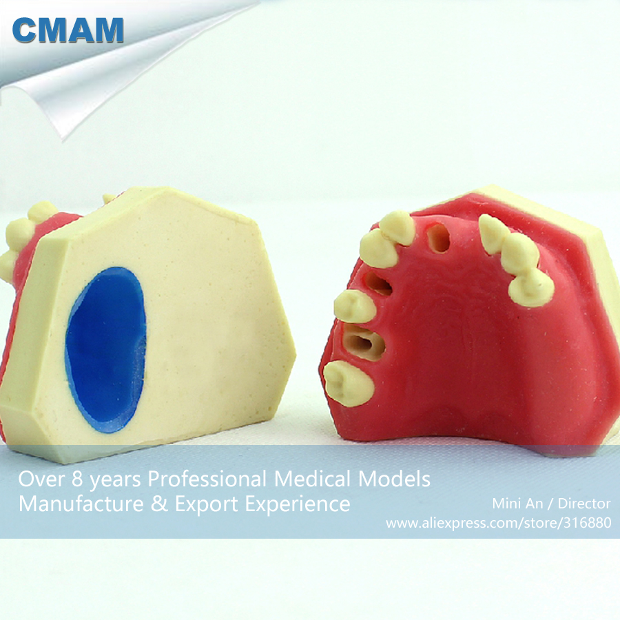 CMAM-IMPLANT01 Implantation Drilling Practice Training Upper Jaw Model,  Medical Science Educational Teaching Anatomical Models cmam implant04 implant jaw model medical science educational teaching anatomical models