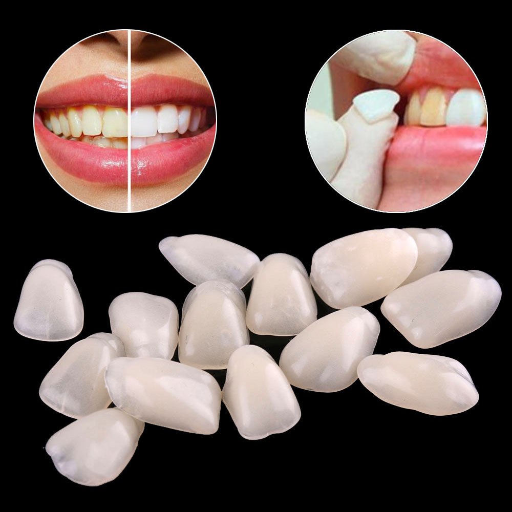 70Pcs/Bag Dental Teeth Veneers Ultra Thin Whitening Resin Anterior Upper Temporary Crown Porcelain Dental Material For Oral Care