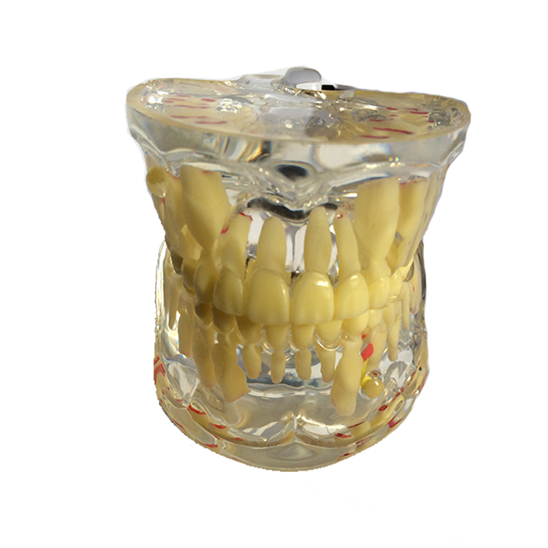 Dentist Children Baby Pathology Medical Dental Teeth Model Pathological Model Dentistry Material Dentist Tools Dental Lab soarday children primary teeth alternating transparent model dental root clearly displayed dentist patient communication