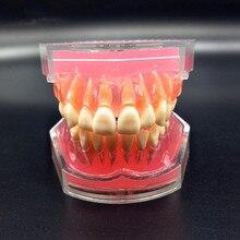 שיניים לימודי הוראת דגם סטנדרטי דגם שיניים נשלפים רך מסטיק למבוגרים TYPODONT דגם