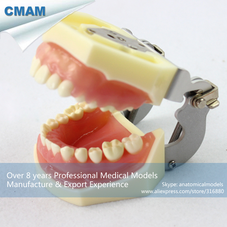 CMAM-DENTAL27 Mild-Moderate Gum Disease Model With Gingival Replacement, Medical Science Educational Teaching Anatomical Models practical dental implant disease teeth model peridontal disease model medical science teaching