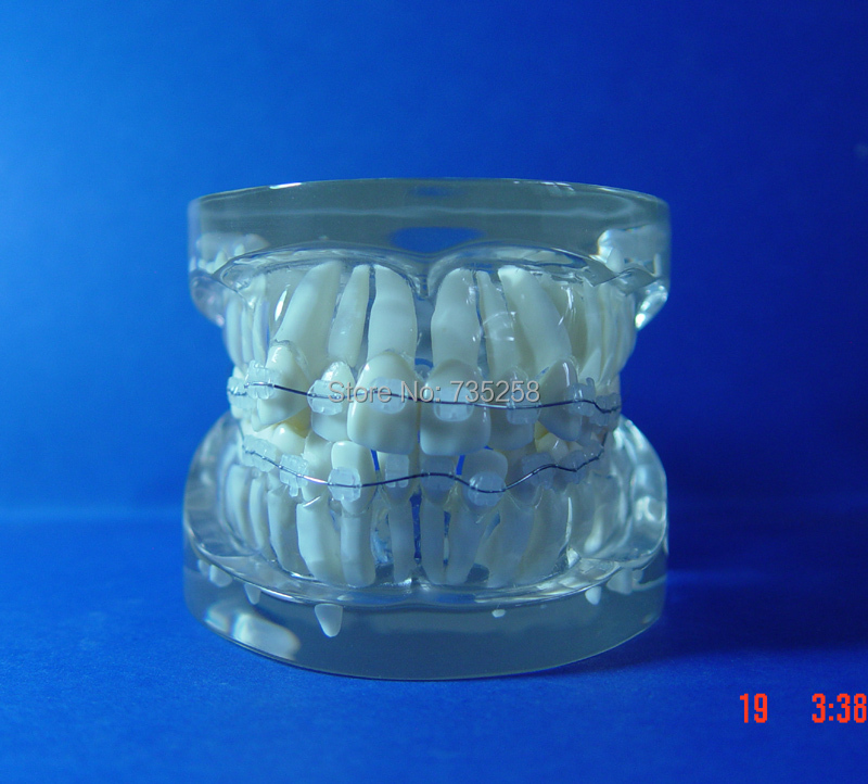 Teeth Orthodontic Model,Ceramic Braces Wrong jaw Demonstration Model,Orthodontics Practice Model teeth orthodontic model metal braces teeth wrong jaws model demonstration tooth orthodontic training model
