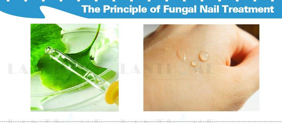 2 unids tratamiento de uñas fungal Pies Cuidado esencia uñas y pies ...