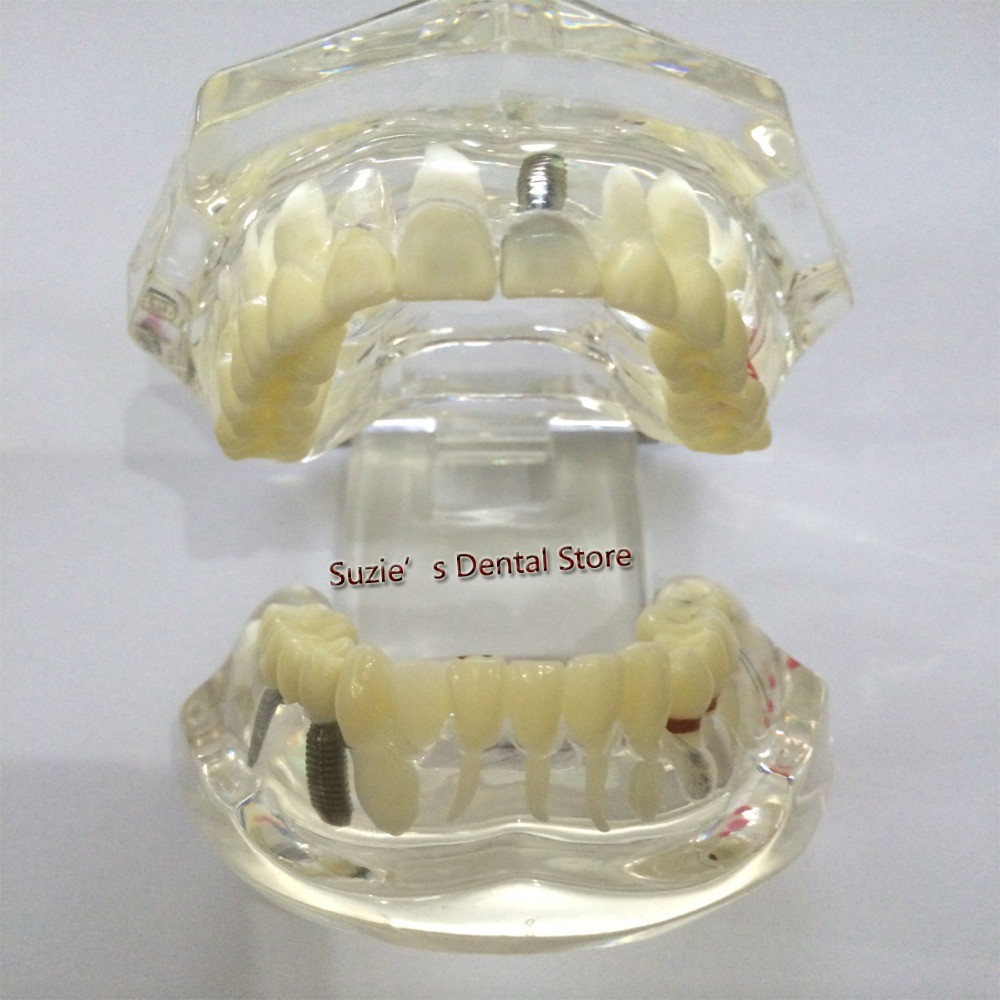 Dental Materials Study Model Pathology Model Teeth Can Be Removed