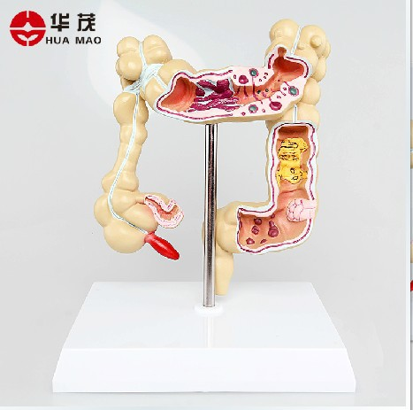 Colonic Lesions Of Colon Polyps Of Colon Cancer Model Of Ulcerative Colitis Appendicitis Modelism Model Constructionmodel Hot Air Balloon Aliexpress