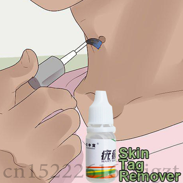 Skin Tag Mole Wart Remover Eye Skin Tag Remover 12 Hours Remover 10ml 2