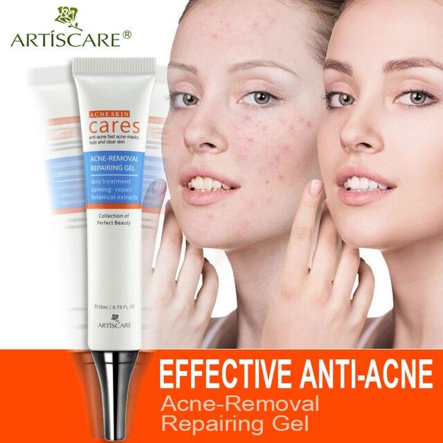 ARTISCARE Acne Removal Repairing Gel Acne Scar Remover Skin Care Facial Cream Comedone Spots Blackhead Treatment Remove Scar Gel