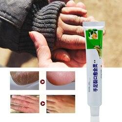 Sumifun Hand Foot Crack Ointment Heel Chapped Peeling Foot Hand Repair Anti Dry Crack Cream Chinese Medical Plaster P1040