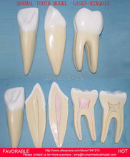 TOOTH DISEASE PATHOLOGICAL ANATOMICAL MODEL OF TEETH CARIES GINGIVAL MEDICAL,DNETAL MODEL LARGE NORMAL TOOTH MODEL-GASEN-RZKQ015