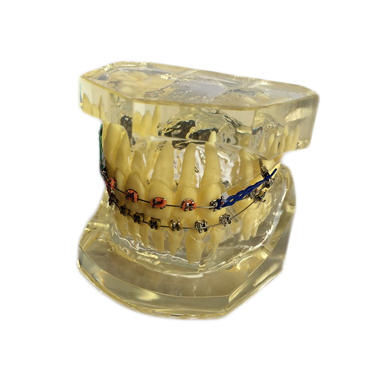 1 pièces dents Standard dentaire modèle Transparent enseigner étude dentisterie matériel dentiste outils matériel de laboratoire dentaire