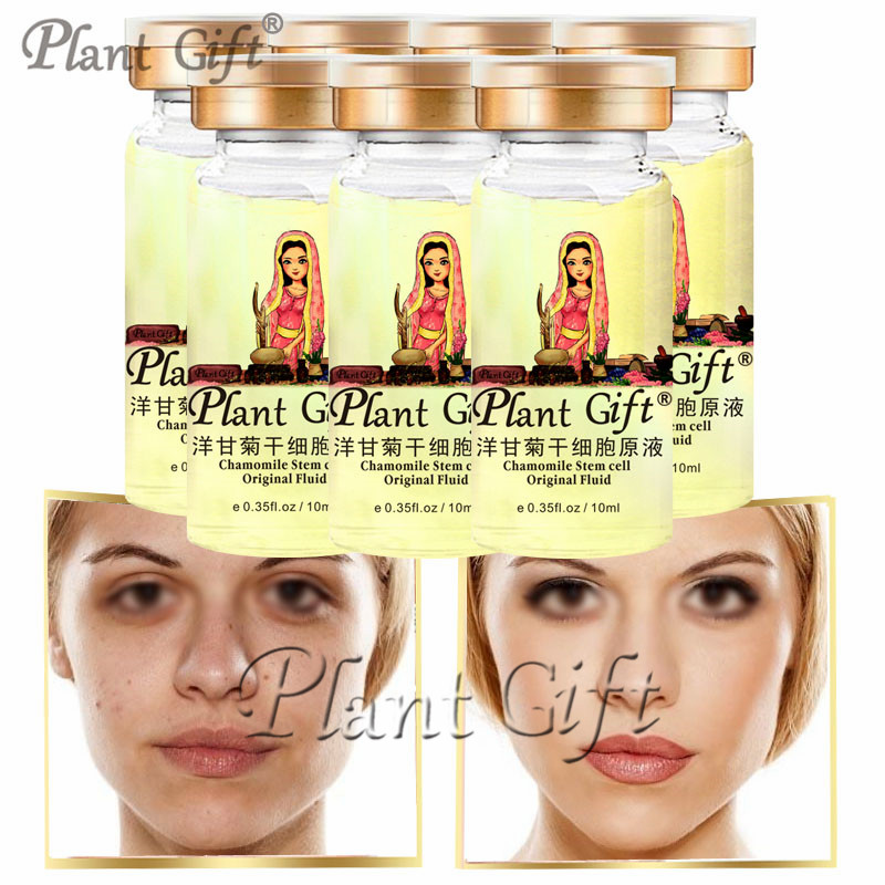 plant gift Hot! Chamomile Stem Cell Original Liquid Remove Dead Skin Mask skin Care Peeling Exfoliating liquid blue lionheart motorola droid 2 skinit skin