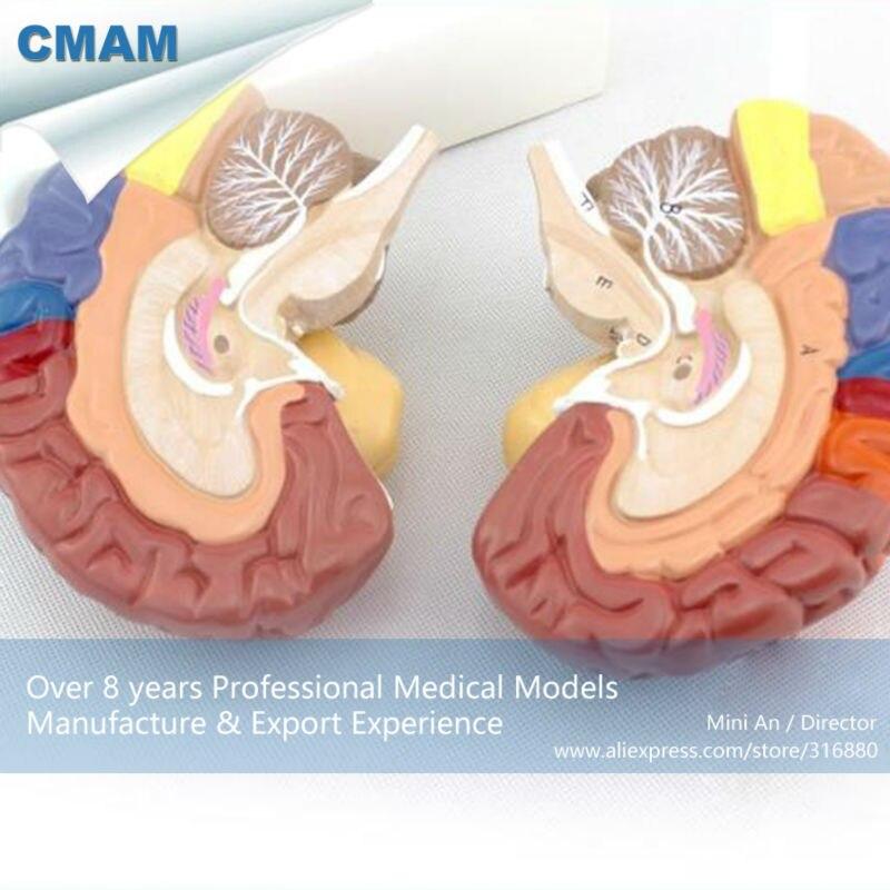 12409 CMAM-BRAIN11 avanzado anatomía médica 2 piezas de sección ...