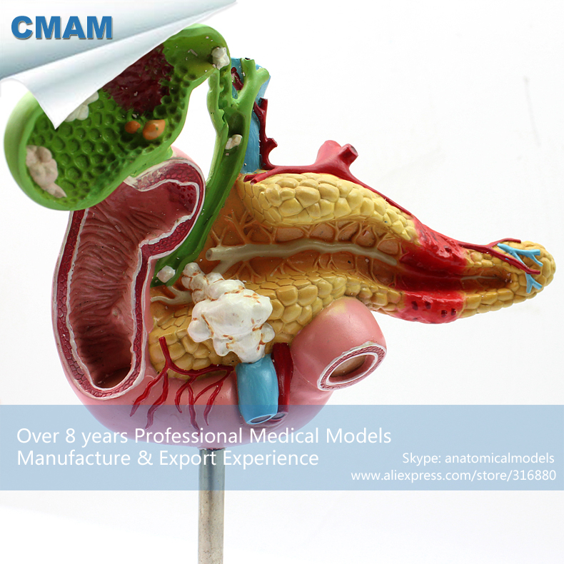 12541 / Pathological Model of Pancreas, Duodenum and Gallbladder,  Medical Science Educational Anatomical Models