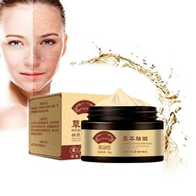 Natural Long Lasting Powerful Freckle Cream 30g Remove Melasma Acne Spots Pigmen