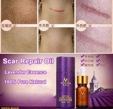 Рубцов, лаванды, травмы шрам профессиональное первоначально акне эфирное удаление кожей масло