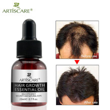 ARTISCARE Fast Powerful Hair Growth Essence Products Essential Oil Liquid Treatment Preventing Hair Loss Hair Care Andrea 20ml(China)