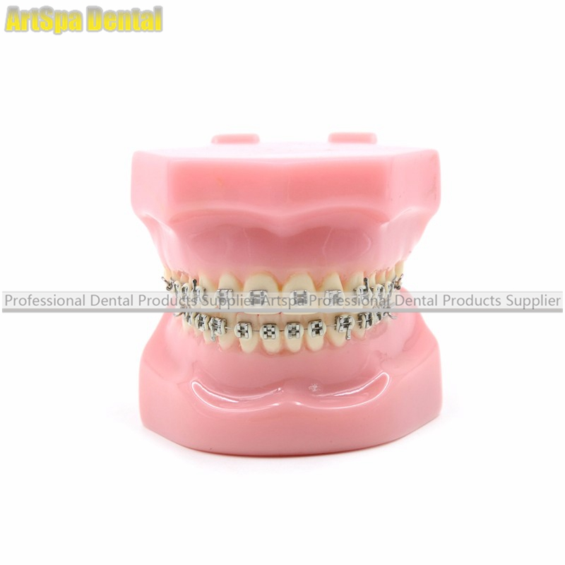 Artspa Dental Orthodontics Typodont Teeth Model Metal Brace Bracket Typodont with Arch Wire 2016 new arrival dental orthodontics typodont teeth model metal brace bracket typodont with arch wire toiletry kits