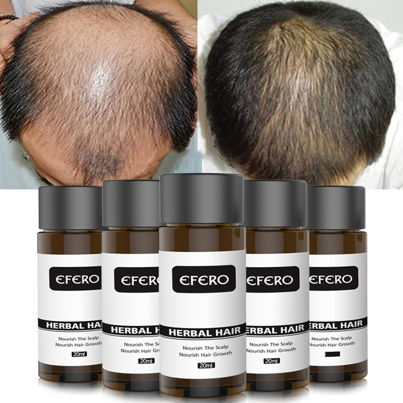 Anti Hair Loss Essence  Serum Tonic Natural Hair Growth Agent Essential Oils Products Dense Hair Restoration Treatment Hair Care