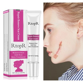 Acne Scar Stretch Marks Remover Cream Skin Repair Face Cream Acne Spots Acne Treatment Blackhead Whitening Cream 20g Health & Beauty