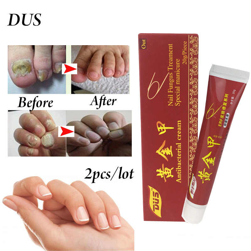 Detail Feedback Questions about 2pcs Nail Treatment Onychomycosis