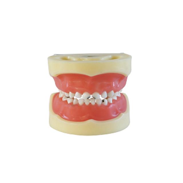 Dental modelo de ensino cárie modelo de criança ( goma pode ser removido )