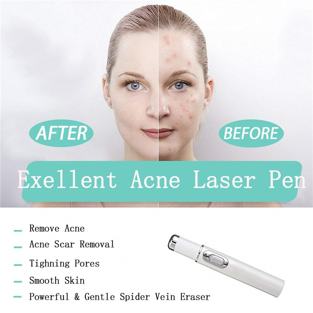 Blue Light Therapy Laser Treatment Pen Facial Massager Acne Soft Scar Wrinkle Removal 2019 New Arrive