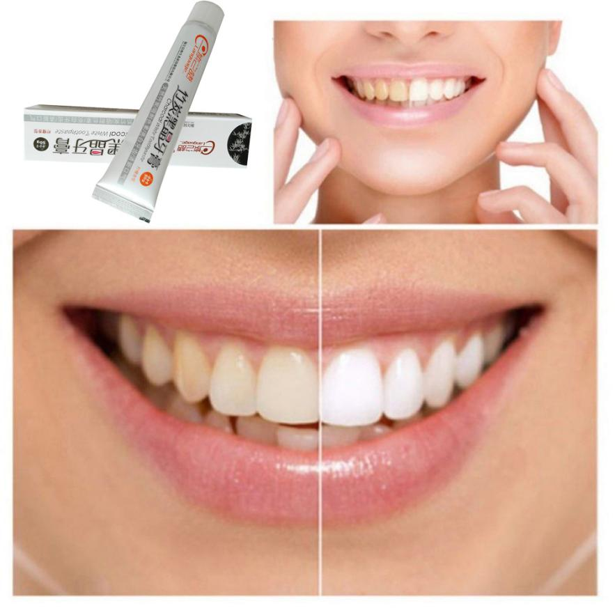 How teeth Whitening Works Intrinsic Intrinsic refers to whitening the inner part of the tooth which soaks up hydrogen peroxide gel also called