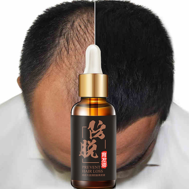 30ml Natural Herb Hair Growth Essential Oils Hair Loss Products Thickening Essen