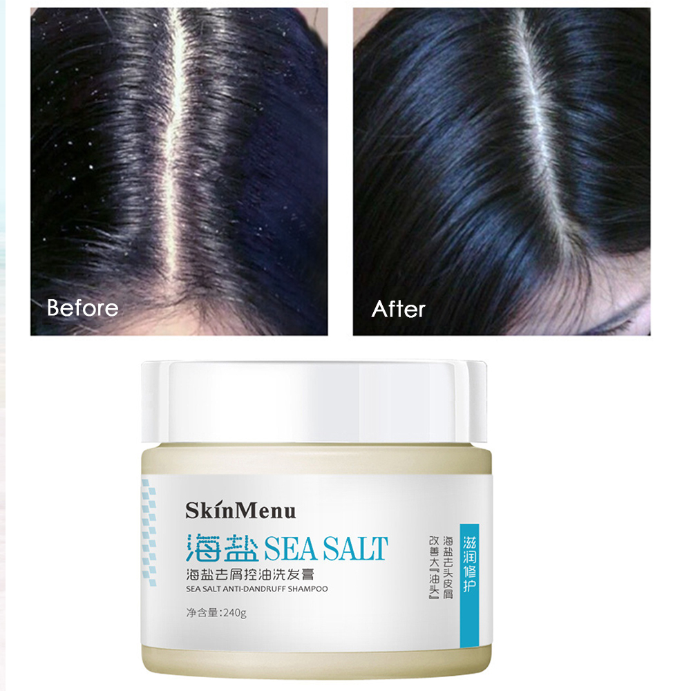 Shampoo-Control Hair-Care Sea-Salt Dandruff Anti-Mite TSLM2 240g Reducing Oil-Relieve
