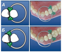 100Pcs Set Dental Sectional Contoured Matrices Matrix Ring Delta 40Pcs Add On Wedge