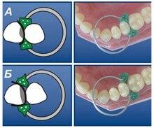 100Pcs/Set Dental Sectional Contoured Matrices Matrix Ring Delta+40Pcs Add-On Wedge