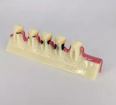 Resin oral periodontal disease classification model gingivitis degree chronic periodontitis model недорго, оригинальная цена