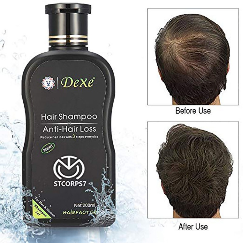 200ml Herbal Hair Growth Products Hair Loss Shampoo Improve Hair Quality Natural Extract Shampoo Hair Care 6