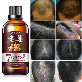 Potężny włosów esencja na długie rzęsy utrata włosów produkty imbir oryginalny 100 utrata włosów cieczy pielęgnacji włosów pielęgnacja włosów istotą oleju 30ml TSLM1 tanie i dobre opinie Produkt wypadanie włosów Beard Growth Moustache Caring Mixed Y W F Drape smooth General MF99843-A Hair Growth Essense Oil