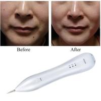 Warts Removal Machine Skin Care Laser Mole Freckle Removal Pen Tool Tattoo Removal Machine Spot Pen