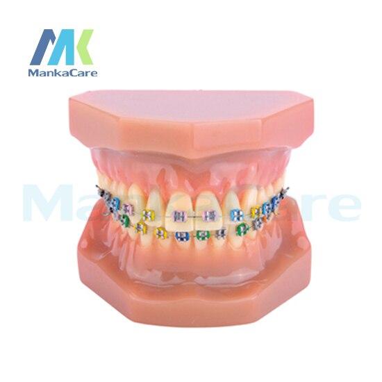 Стоматологическая Ортодонтическая модель лечения с Орто металлическим кронштейном арки проволоки Buccal трубки лигатуры Галстуки металличе