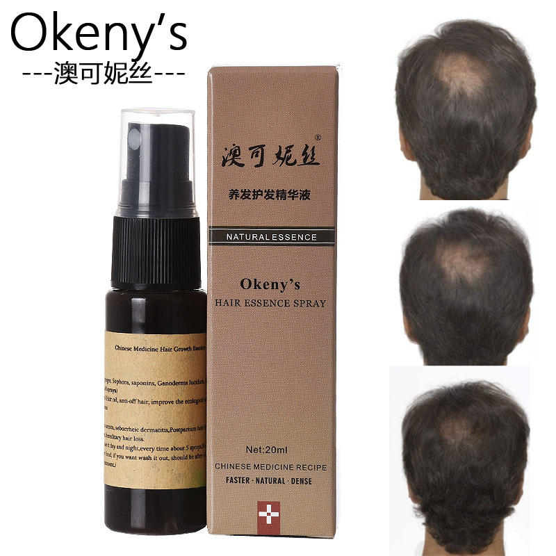 Lanthome Unisex 100% Effective Germinative Anti Gray Hair Andrea Hair Growth Liquid Regrowth Spray Creams For Baldness Repair Sturdy Construction Hair Loss Products Back To Search Resultsbeauty & Health