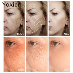 Image 2 - Tag Cremes Feuchtigkeitscremes Koreanische Kosmetik Geheimnis Hautpflege Schnecke Creme Hyaluronsäure Essenz Creme Für Gesicht Anti Aging Falten